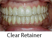 Clear Retainers in Morganville