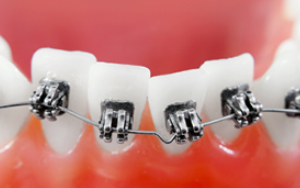 Braces near Freehold